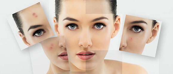Acne scars are a troublesome reminder of acne. Laser skin resurfacing is an effective treatment against this disease known as pimples.
